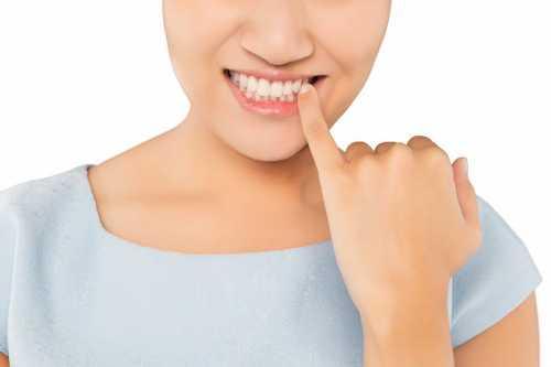 正畸矯正時爲什麽要先分牙?